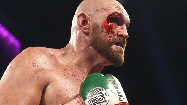 Тайсона Фьюри госпитализировали: боксеру понадобится пластическая операция