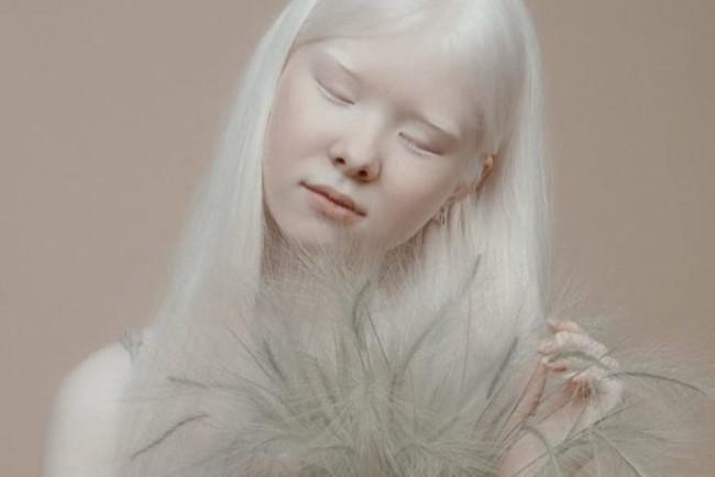 Девочка-альбинос из Казахстана