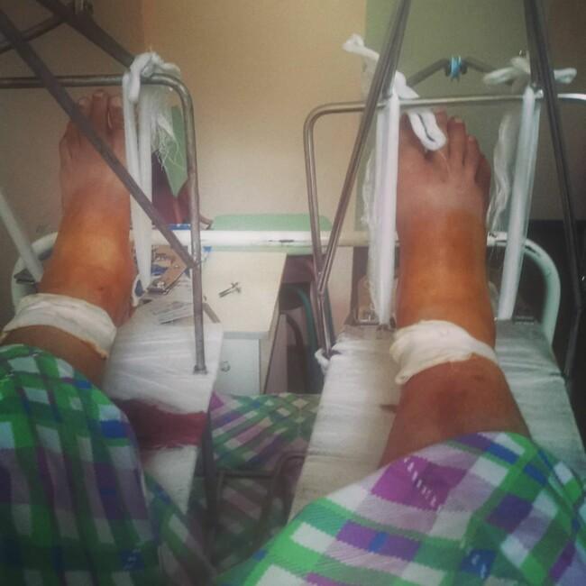 """Полежайкін з """"Татусевих доньок"""" лежить в лікарні з переломом обох ніг"""