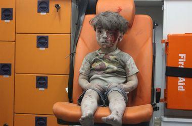 5-летний мальчик выжил чудом. Фото: AFP